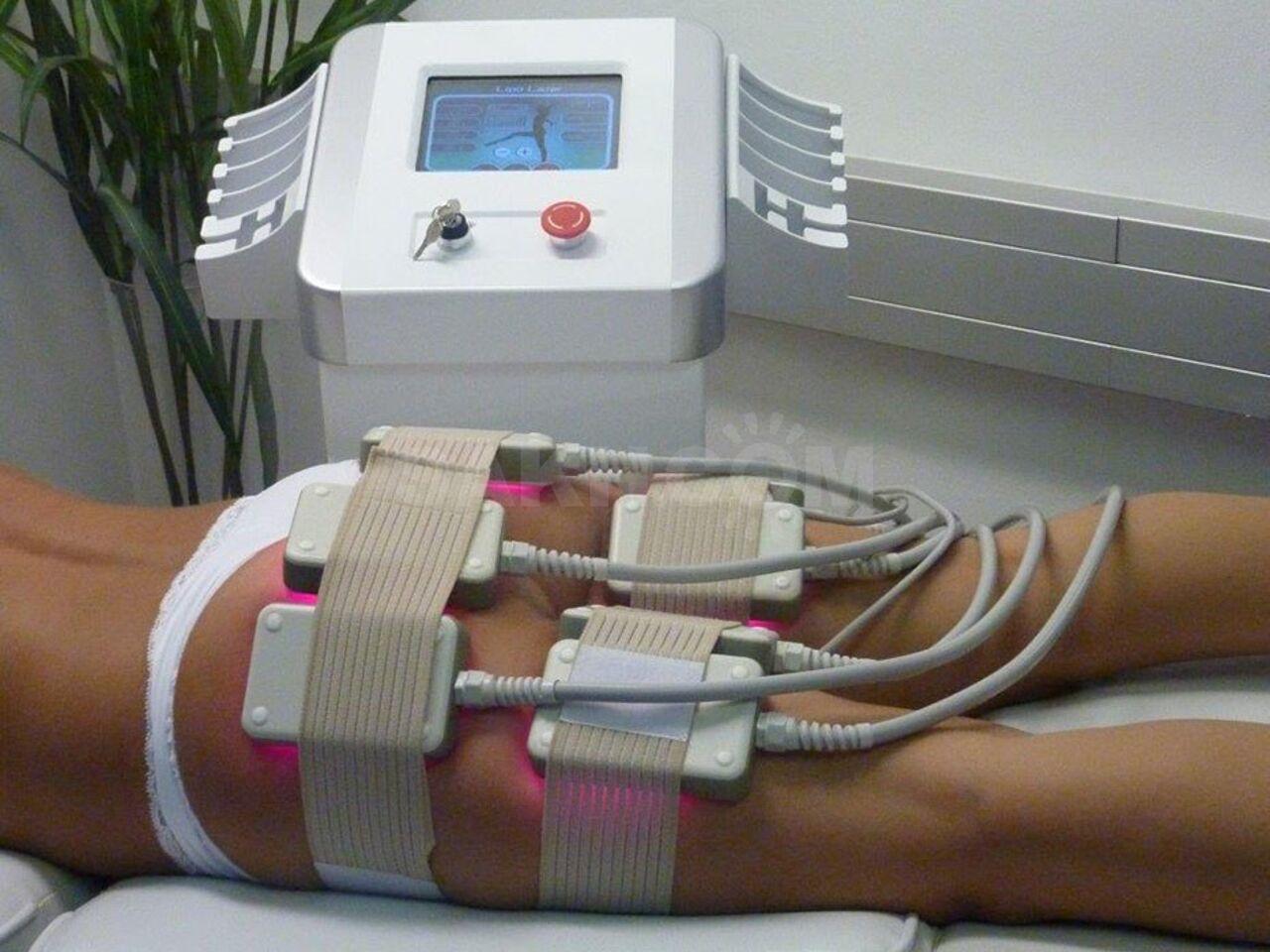 Лазерная Процедура Похудения. Лазерная липосакция живота (липолиз) – уберите до 20 см в области талии